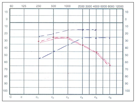 Audiogram – prevodová porucha sluchu vľavo.