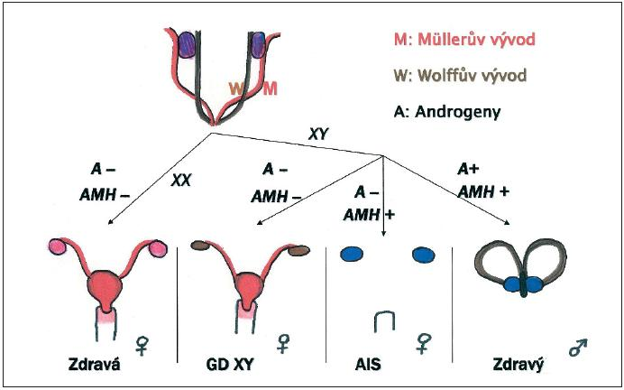 Nahoře: Müllerovy a Wolffovy pohlavní vývody a indiferentní gonády v embryonálním období