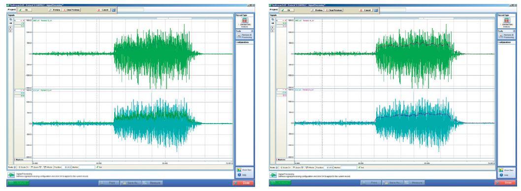 Aktivace m. vastus medialis a m. vastus lateralis při maximální izometrické kontrakci (5 s) v 75° flexi kolenního kloubu u zdravého jedince vsedě. Použité metody: Izokinetická dynamometrie přístroj IsoMed 2000 a povrchová elektromyografie přístroj NORAXON – MYOSYSTEM 1400a (vzorkovací frekvence 1000 Hz, frekvenční pásmo 10-500 Hz další specifikace viz http://www.noraxon.com/docs/1400a/6-myosystem-1400a-v10.pdf?sfvrsn=0). Ukázka hodnocení pomocí parametru RMS (viz text), vyhlazení: velikost posuvného okna 25 ms (vlevo), velikost posuvného okna 250 ms (vpravo).