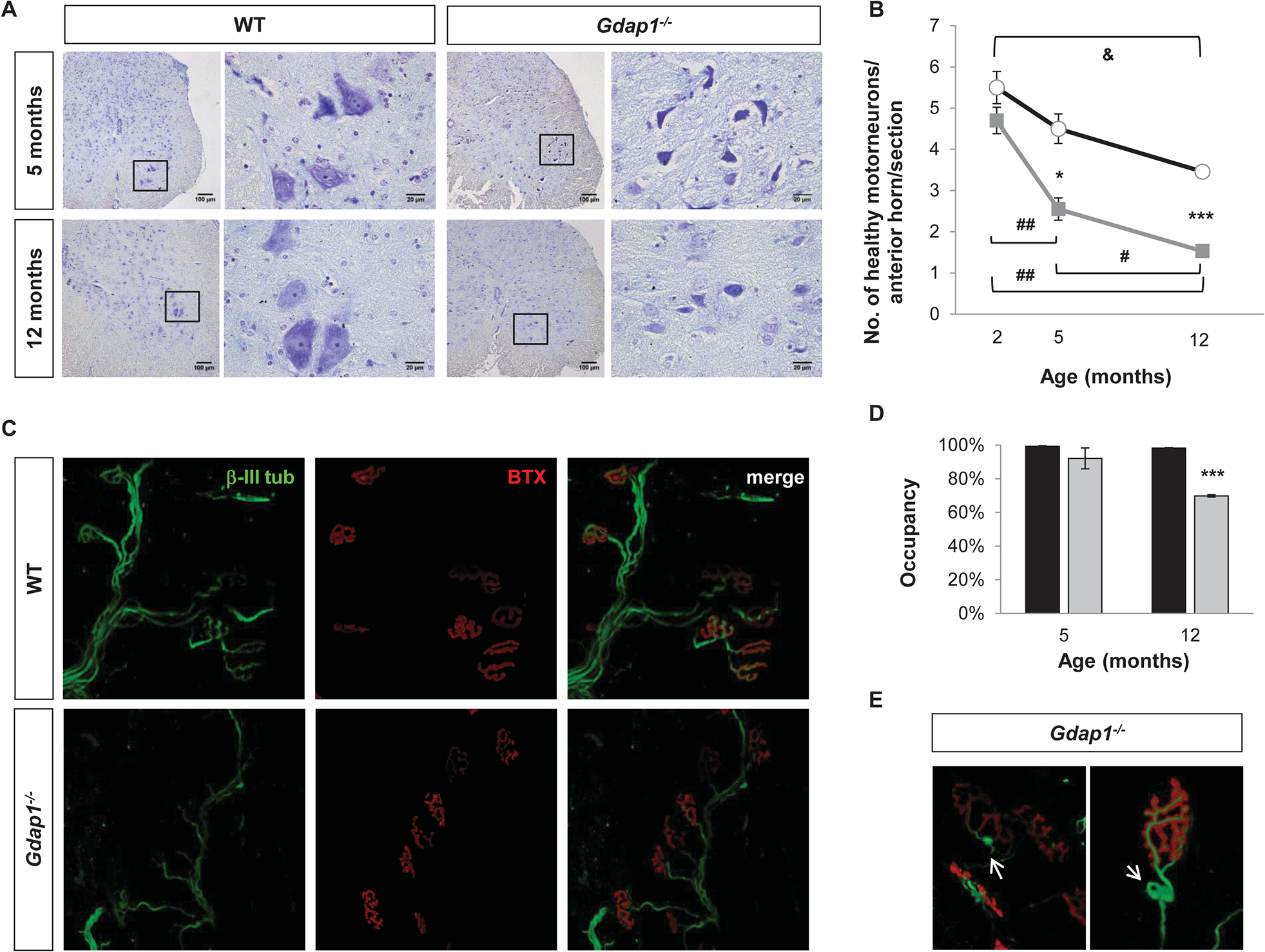 Lack of GDAP1 leads to loss of motor neurons and abnormal neuromuscular junctions.