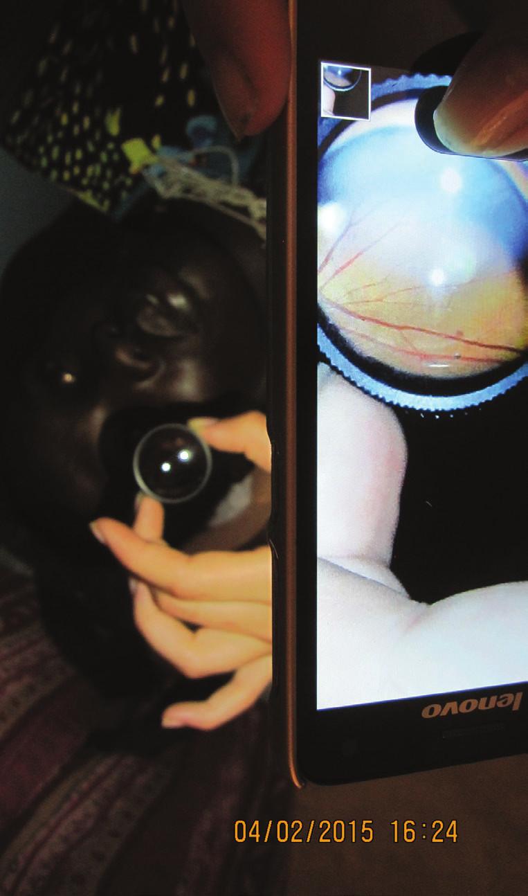 Predložená Volkova šošovka pred oko počas vyšetrenia očného pozadia pomocou smartfónu
