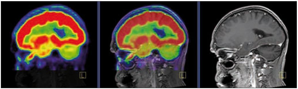 PET – low dose CT mozku. Snížená akumulace fluorodeoxyglukózy v oblasti cerebella, sagitální projekce atrofické změny cerebella v CT zobrazení.