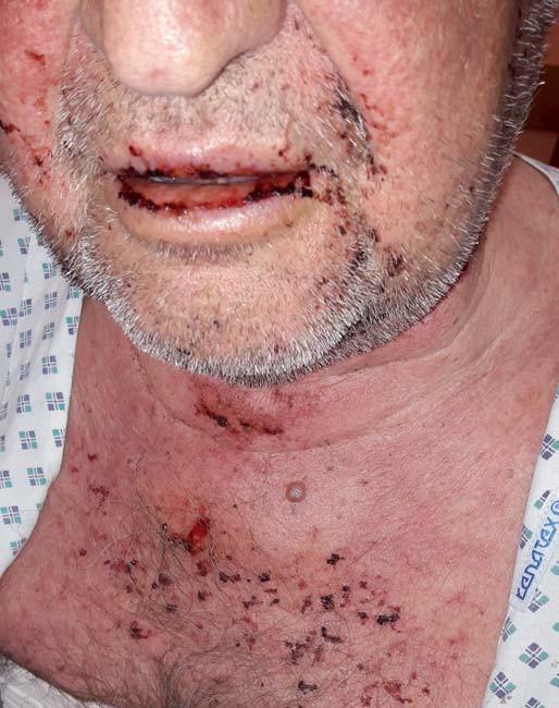Eroze a macerace na sliznici rtů a dutiny ústní.