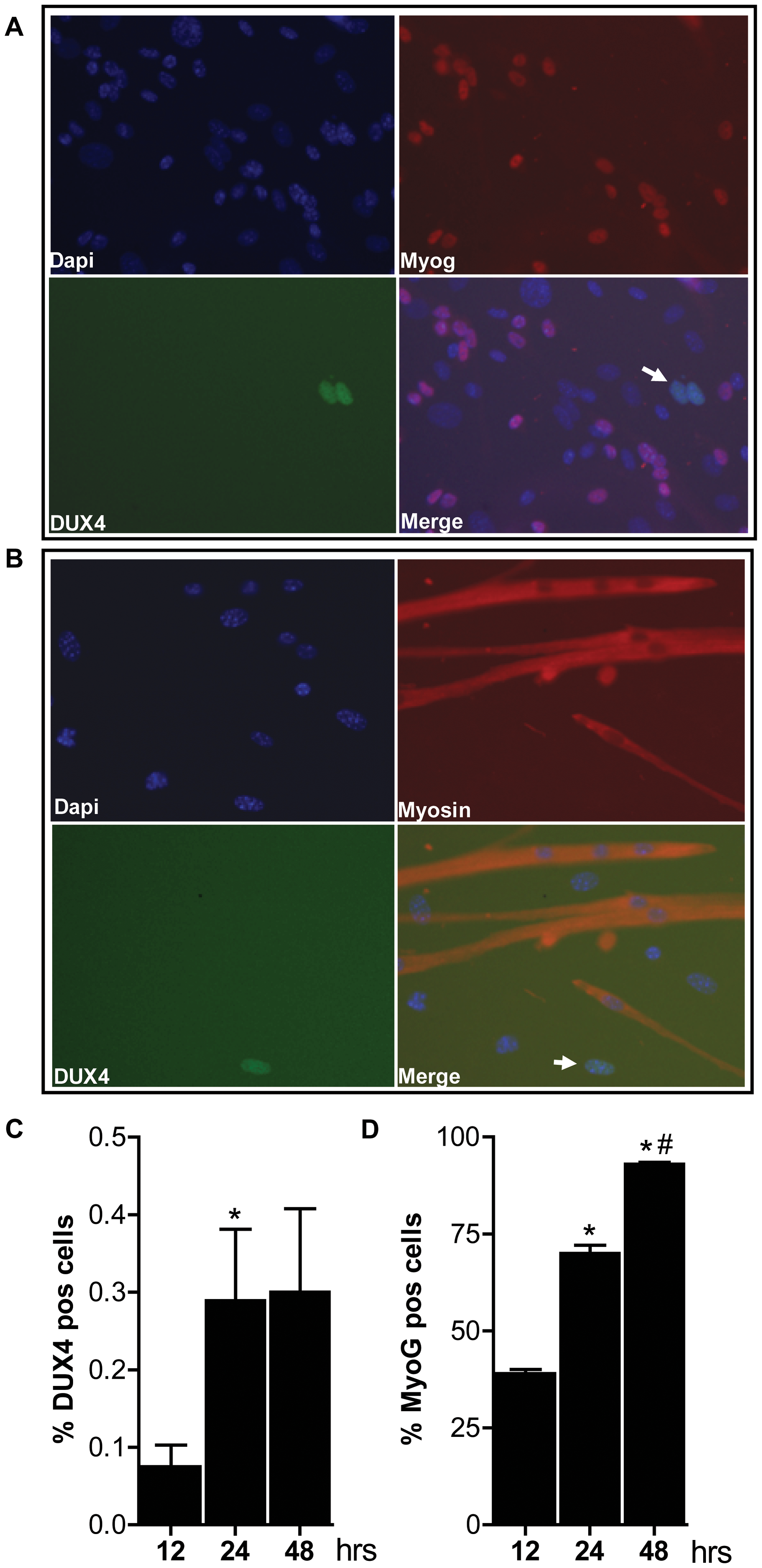Bursts of DUX4 protein expression in differentiating D4Z4-2.5 muscle cells.