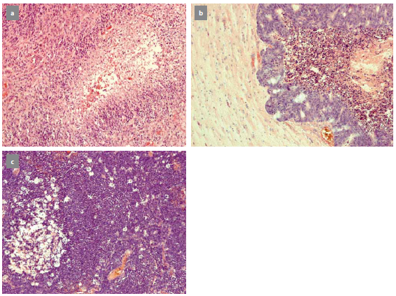 Typický nález glioblastoma multiforme (a), metastáza karcinomu rekta (b), primární lymfom CNS (c). Fig. 1. A typical image of glioblastoma multiforme (a), metastasis of carcinoma of rectum (b), primary CNS lymphoma (c).