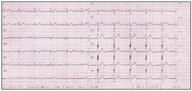 Elektrokardiografický záznam pacientky z roku 2001 získaný při běžné hematologické kontrole, subjektivně bez potíží.