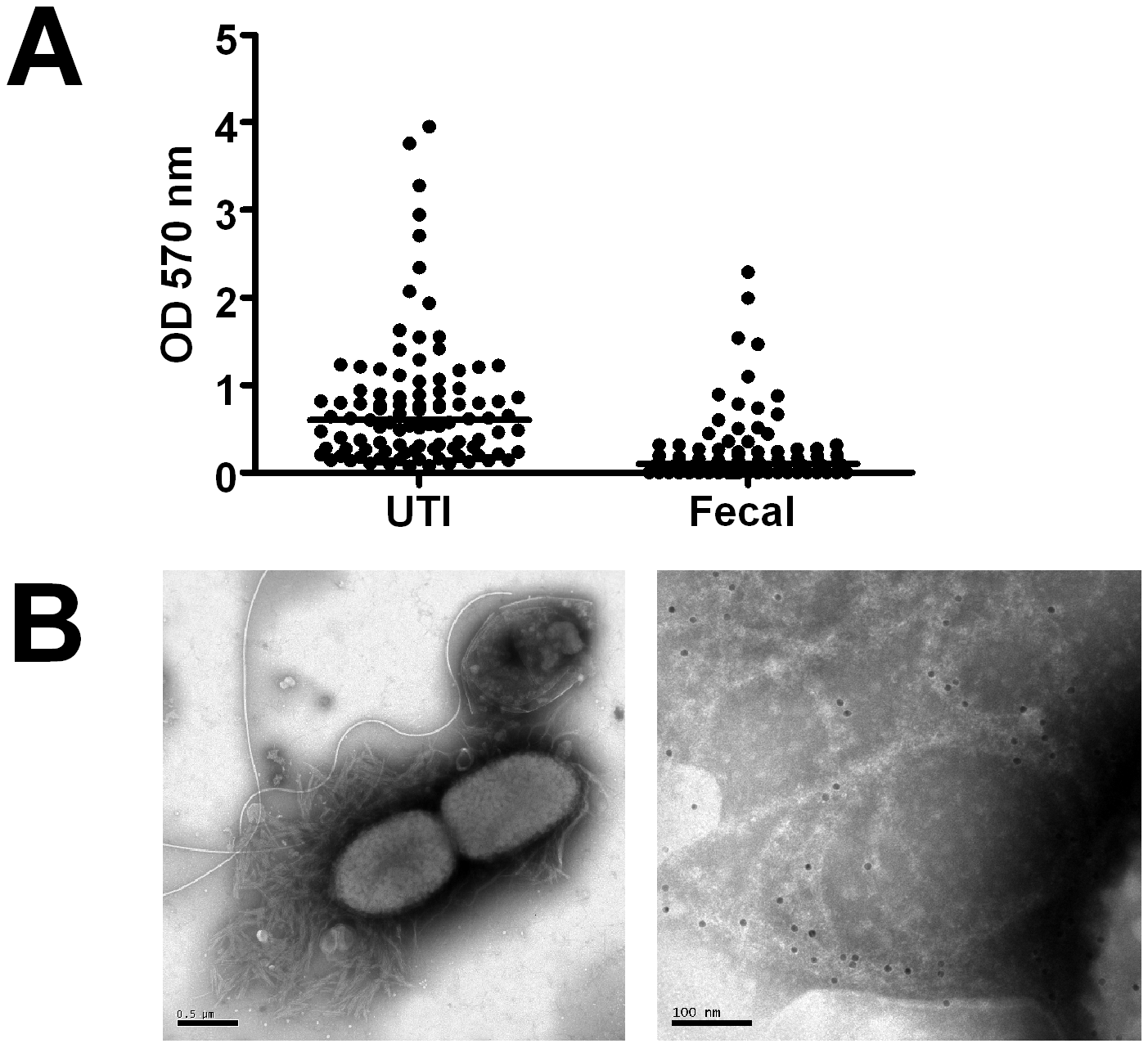 Biofilm expression by uropathogenic and fecal <i>E. coli</i> isolates.
