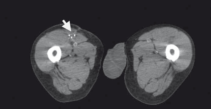 Plánovací CT s třemi aplikátory brachyterapie v resekční dutině (zrcadlové zobrazení).
