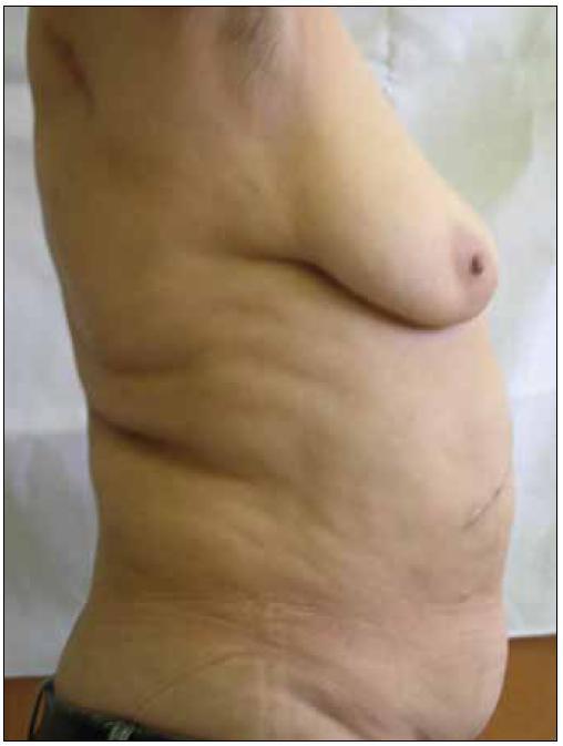 Lipohypertrofie – akumulace tuku v abdominální oblasti.