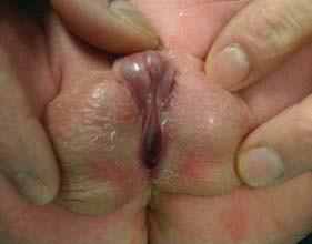 Obraz penoskrotální hypospadie - ústí uloženo na rozštěpeném šourku.