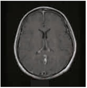 Figure 1. Enhanced magnetic resonance imaging demonstrating diffuse non-nodular, uninterrupted pachymeningeal gadolinium enhancement.