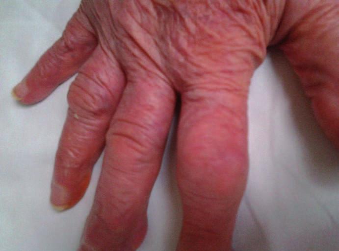 Dnavá artropatie u 87leté pacientky, postižení interfalangeálních kloubů.