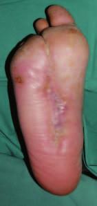 Zhojení defektu po 4 měsících léčby preparátem Hyiodine®.
