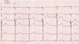 EKG po implantácií CRT u pacienta, ktorého QRS komplex mal predimplantačne morfológiu BĽTR (rovnaký pacient ako na obr. 1). QRS má šírku 100 ms, prítomný R kmit vo zvode V1 s redukciou S kmitu (materiál Kliniky kardiológie LF UPJŠ a VÚSCH a.s., Košice)