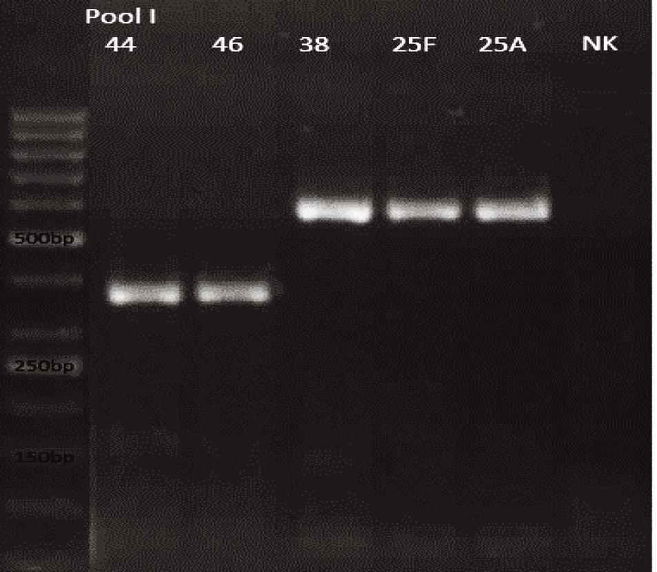 mPCR pool I Dráha 1: 50bp DNA Ladder Dráha 2: <i>S. pneumoniae</i> sérotyp 44 (376bp) Dráha 3: <i>S. pneumoniae</i> sérotyp 46 (376bp) Dráha 4: <i>S. pneumoniae</i> sérotyp 38 (574bp) Dráha 5: <i>S. pneumoniae</i> sérotyp 25F (574bp) Dráha 6: <i>S. pneumoniae</i> sérotyp 25A (574bp) Dráha 7: negativní kontrola Dráha 2–6: pozitivní produkt cpsA (160bp)<br> Fig. 9. mPCR pool I Lane 1: 50bp DNA Ladder Lane 2: <i>S. pneumoniae</i> serotype 44 (376bp) Lane 3: <i>S. pneumoniae</i> serotype 46 (376bp) Lane 4: <i>S. pneumoniae</i> serotype 38 (574bp) Lane 5: <i>S. pneumoniae</i> serotype 25F (574bp) Lane 6: <i>S. pneumoniae</i> serotype 25A (574bp) Lane 7: negative control Lanes 2–6: positive product cpsA (160bp)