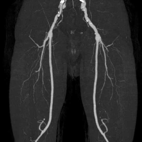 CT AG dolních končetin po půl roce od infektu FP bypassu