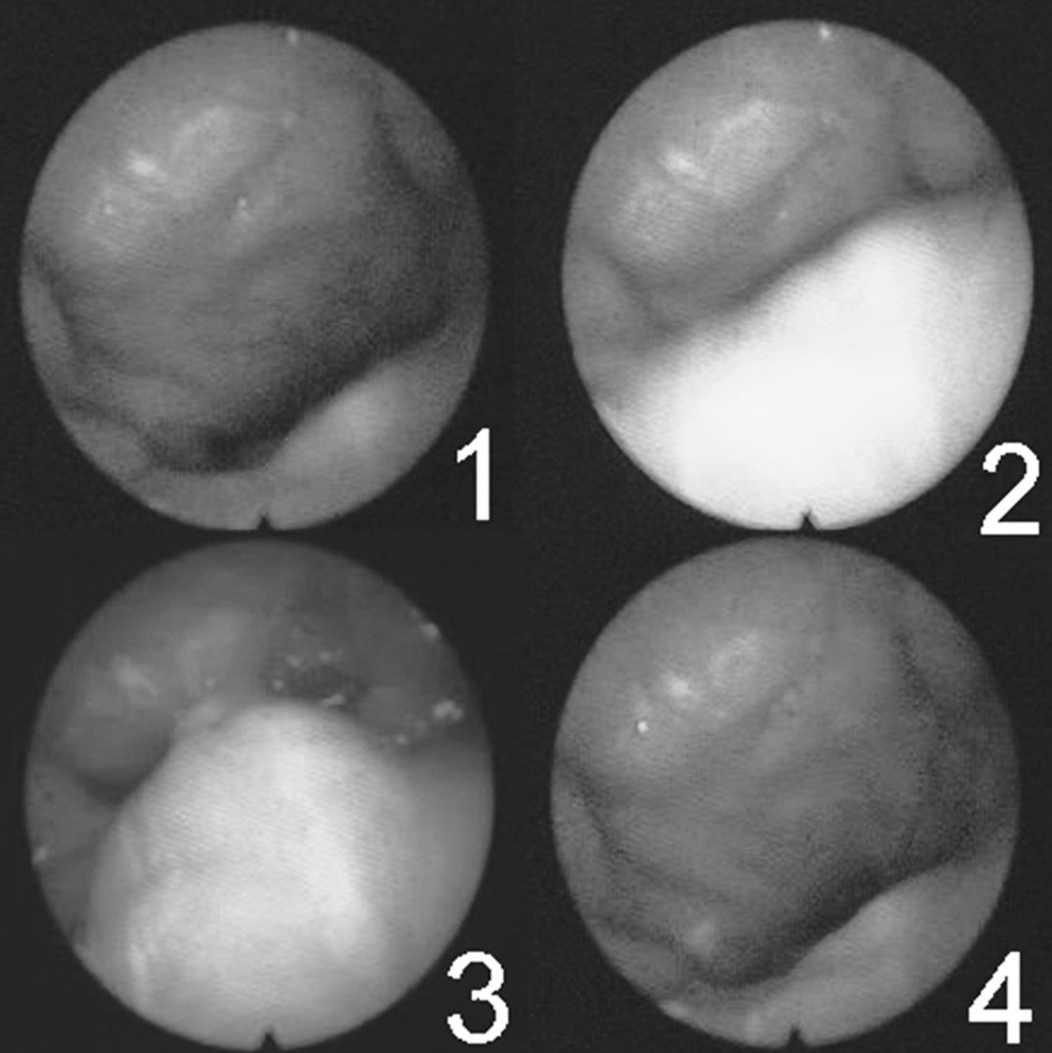 Série snímků zachycující pohyby velofaryngeálního uzávěru během polknutí (maximum uzávěru představuje číslo 3).