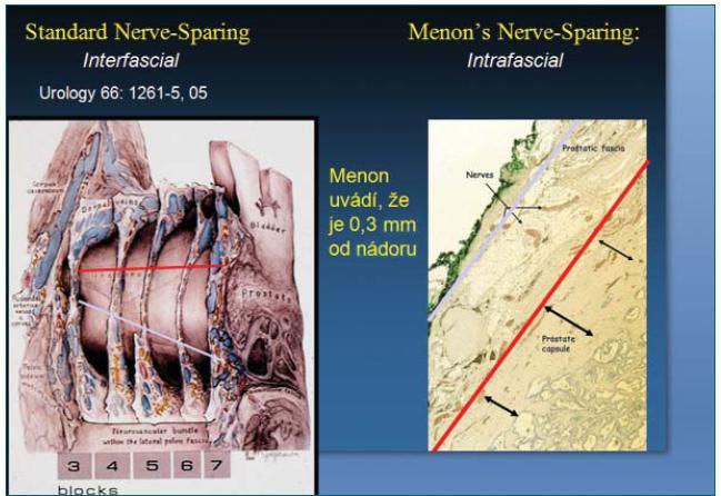 Schéma bezpečné onkologické vzdálenosti (vzdálenosti od nádoru) při interfasciální a intrafasciální preparaci.