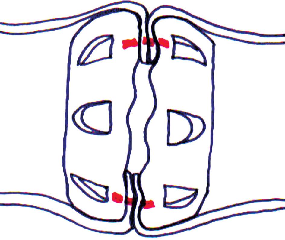 Pohľad na Valtrakový prstenec a jeho pozíciu, ktorá viedla k vytvoreniu tkanivového mostíka (červená línia znázorňuje okraje tkanivového mostíka) Fig. 3. View on Valtrac ring and it's position, which led to creating of the tissue bridge (red line denotes edges of tissue bridge)