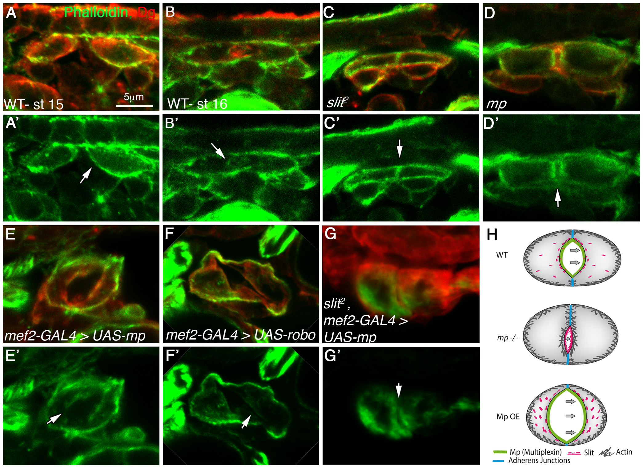 Mp activity reduces F-actin levels at the cardiac luminal membrane in a <i>slit</i> dependent manner.