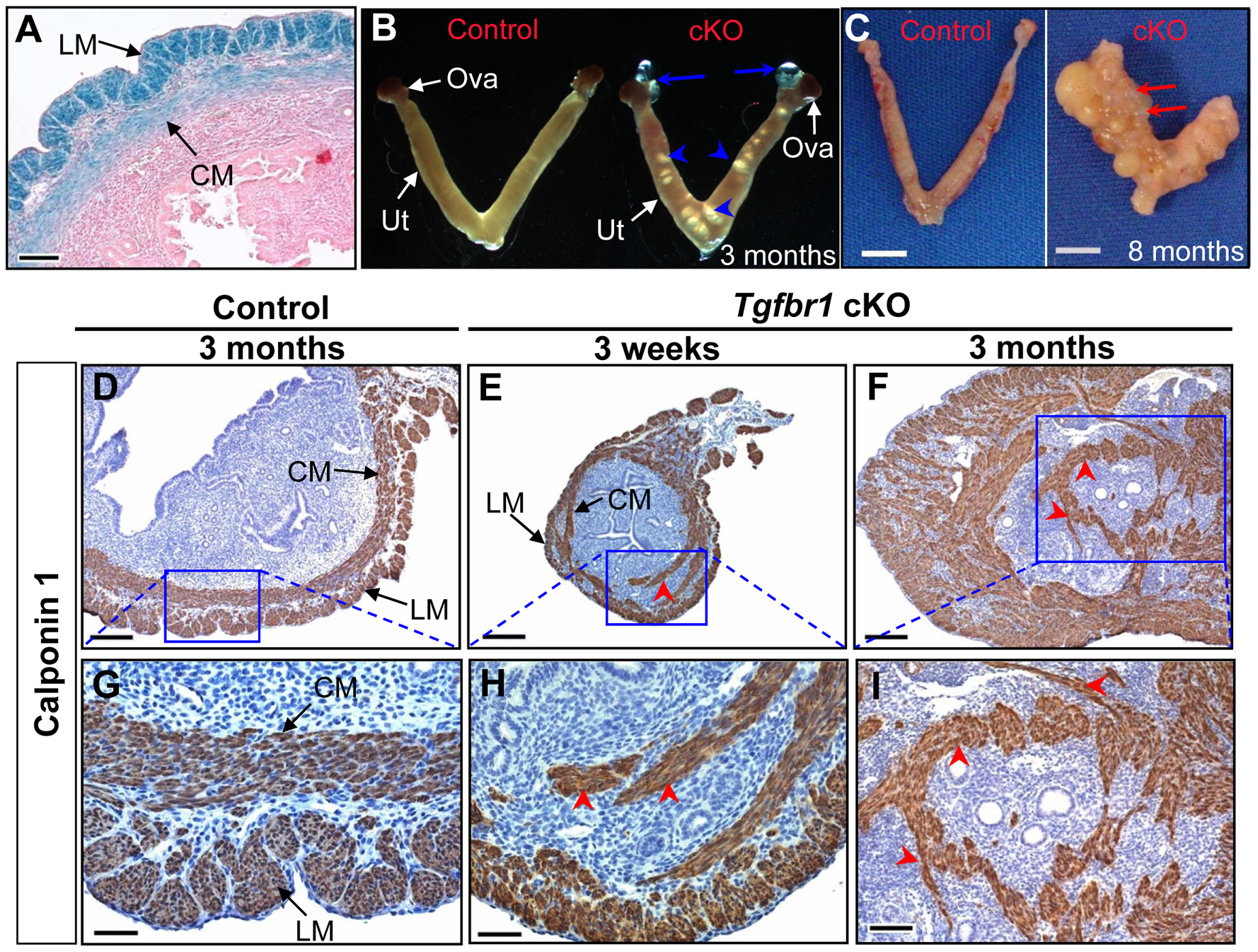 <i>Tgfbr1</i> cKO mice demonstrate disrupted uterine smooth muscle development.