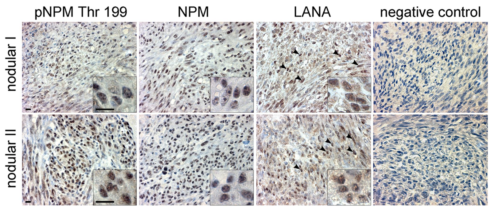KS tumors express NPM phosphorylated on Thr199.