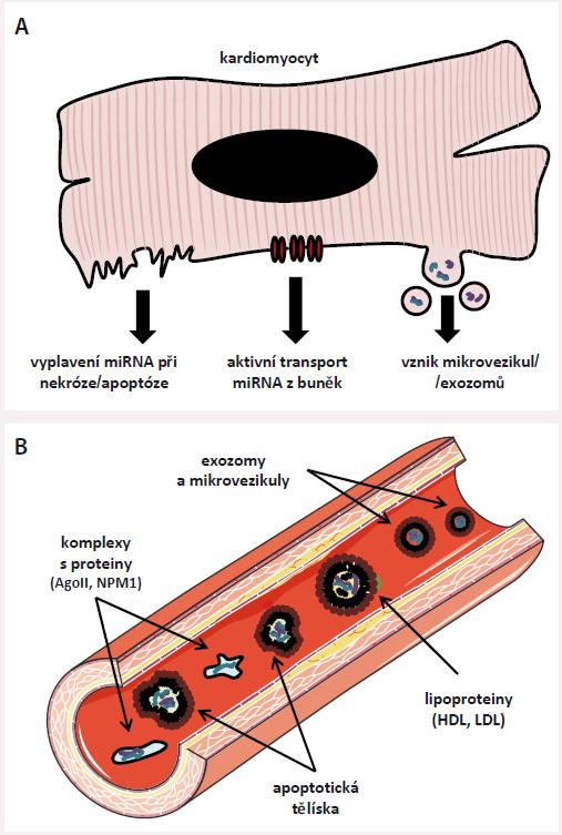 Základní informace o extracelulárních miRNA. A) Do extracelulárního prostoru se miRNA dostávají pasivně při zániku buněk (např. v procesu nekrózy) nebo jsou do něj aktivně pumpovány, ať již pomocí různých přenašečů, nebo v podobě mikrovezikul/exozomů (malých membránových váčků). Aktivně uvolňované miRNA slouží pro mezibuněčnou komunikaci, pasivně uvolňované miRNA jsou odrazem poškození tkání. B) V cirkulaci můžeme najít miRNA, které jsou chráněné před rozkladem tělu vlastními RNázami (enzymy štěpícími RNA) několika způsoby: jsou napojeny na RNA-vazebné proteiny (Ago II, NPM1), nebo jsou uloženy v molekulách lipoproteinů o vysoké/nízké hustotě (HDL,LDL), v apoptotických tělíscích nebo v membránových váčcích (exozomech a mikrovezikulách). Metody molekulární biologie dokonce umožňují studium miRNA v jednotlivých modalitách.