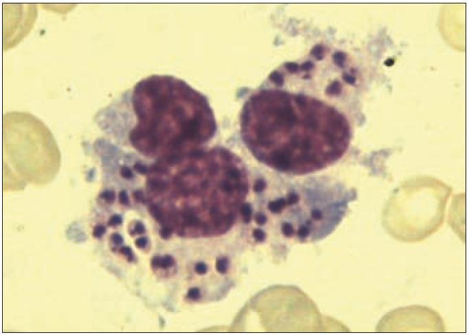Amastigoty <em>Leishmania sp.</em> fagocytované makrofágem v kostní dřeni (barvení dle Pappenheima, zvětšeno 1 000krát).
