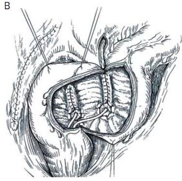 Obr. 11B. Mainz pouch II – implantace močovodů.