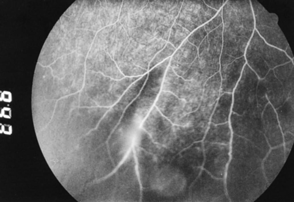 Fluoresceínová angiografia z 22. 3. 2004: a. v. shunty, a v neskorších fázach angiografie presakovanie farbiva z postihnutých ciev do okolitej sietnice