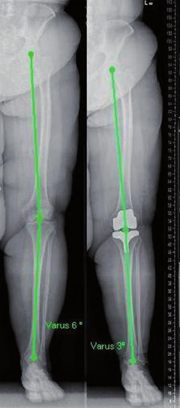 Mechanická osa končetiny před operací a po implantaci endoprotézy – rtg