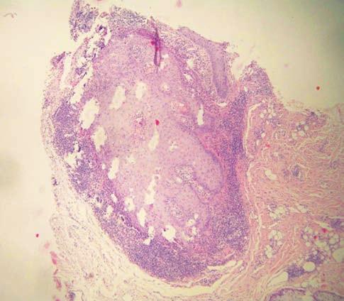 Histologický nález Vlasový folikul v šikmém řezu má akantotickou stěnu, ke které přiléhá pruhovitý infiltrát lymfocytů (HE, 40x)