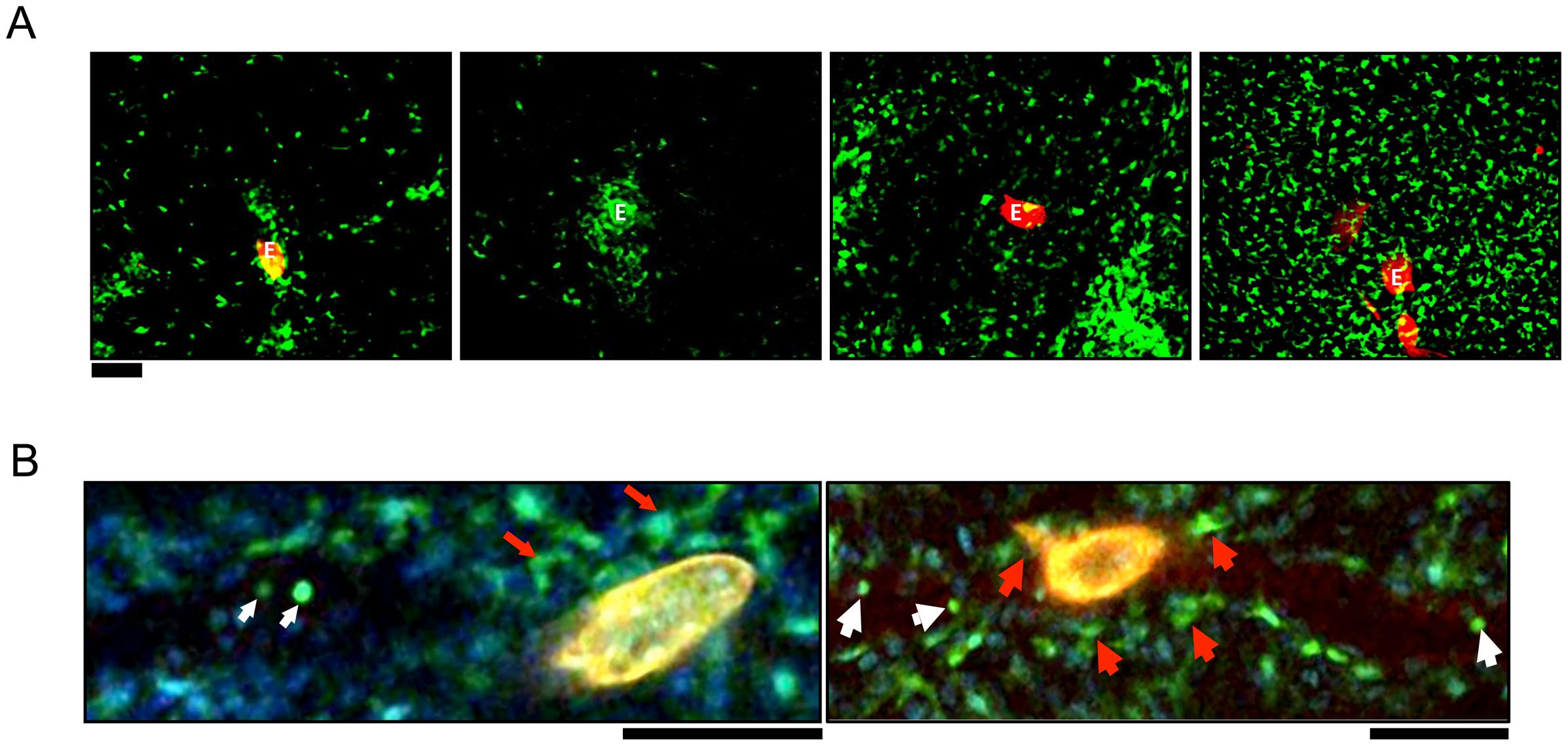 CX<sub>3</sub>CR1-GFP<sup>+</sup> cells accumulate in the hepatic granulomas around <i>S. mansoni</i> eggs.
