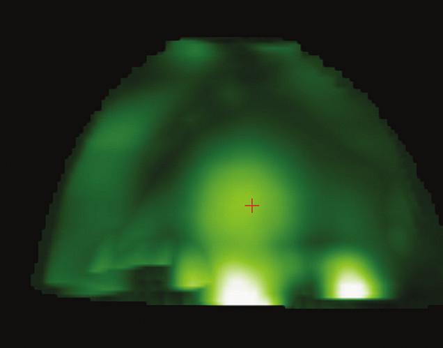 Neovaskularizace v centru prsu s patrnou vysokou signálovou intenzitou – neovaskularizace je označena červeným křížkem