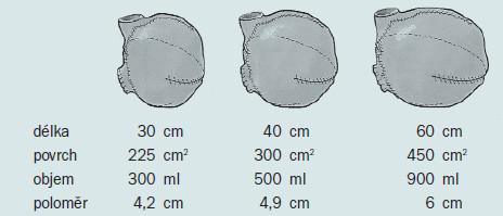Jak si můžeme povšimnout na obrázku, zvětšení délky střevního segmentu nemá u rezervoáru kulovitého tvaru za následek lineární změnu povrchu ani objemu. Při zvětšení délky segmentu dochází k násobnému zvětšení povrchu a objemu, a tedy ke vzniku ochablého rezervoáru [24]. Otištěno se svolením.