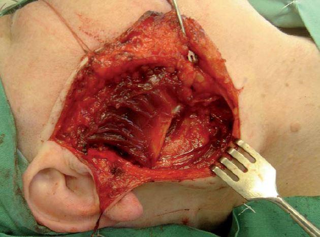 Peroperační snímek rozprostření laloku do lůžka po parotidektomii.