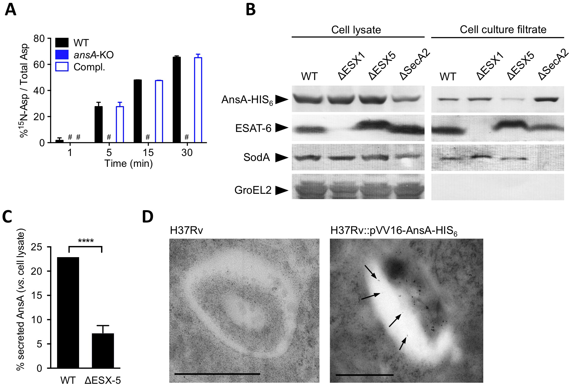 In vitro expression and localization of recombinant AnsA-His<sub>6</sub> in <i>M. tuberculosis</i> wild-type and ESX-1, ESX-5 or SecA2 mutant strains.