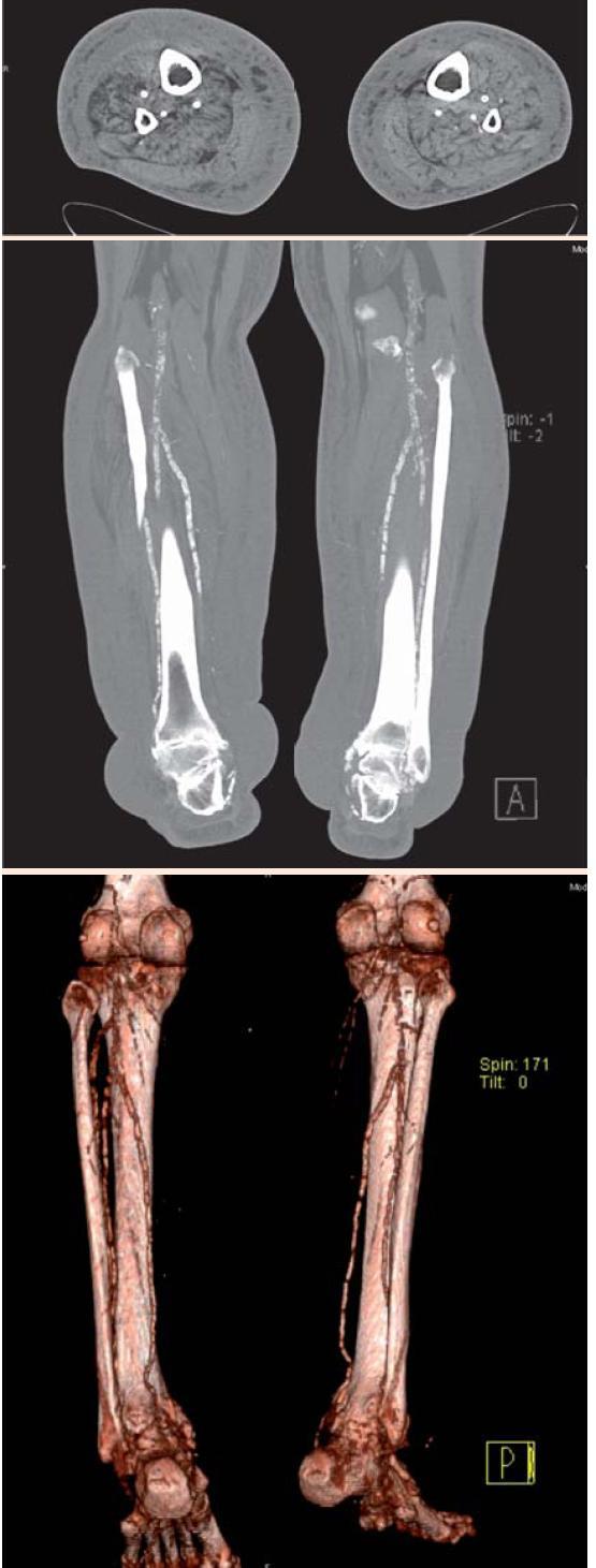 Obr. 6.3. CT-vyšetrenie oboch predkolení a nôh natívne