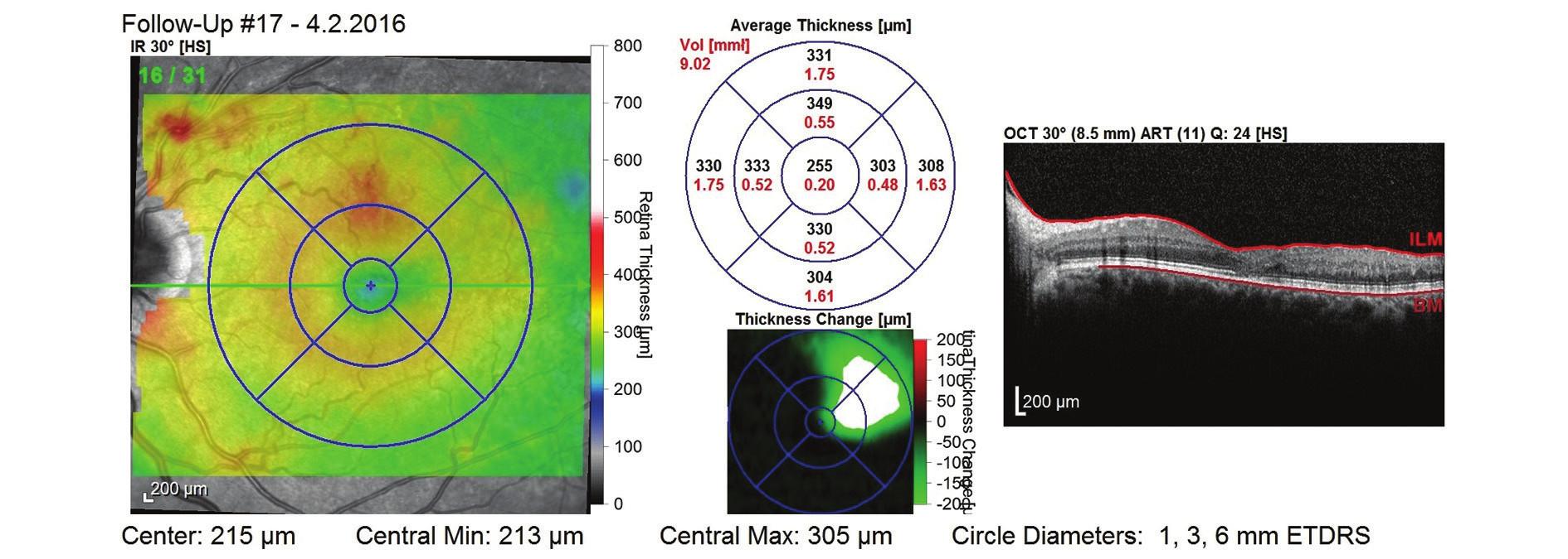 OCT snímek po dvou letech léčby (během 2. roku léčby bylo podáno 6 aplikací) – bez známek ME, mírná desorganizace zevních vrstev neuroretiny, CTR 255 μm a NKZO 80 písmen ETDRS optotypu