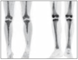MIP (Maximum Intensity Projections) PET dolních končetin u 2 pacientů s Erdheimovou-Chesterovou chorobou, kterými lze získat trojrozměrnou představu o distribuci radiofarmaka fluorodeoxyglukózy (FDG).  Ložiska zvýšené akumulace radiofarmaka nacházíme u obou pacientů bilaterálně ve stehenních a bércových kostech s maximem postižení v oblasti distálních femorů a proximálních tibií.