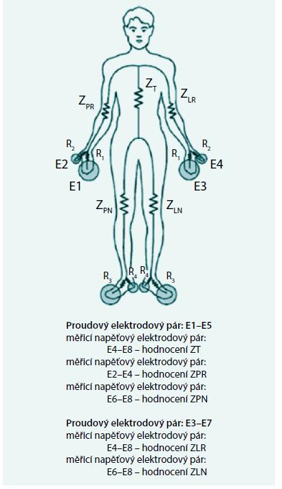Víceelektrodové BIA měření umožňující stanovení impedance jednotlivých segmentů těla