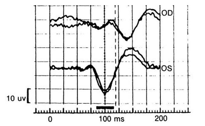 Patologická křivka VEP při akutní ON vpravo.