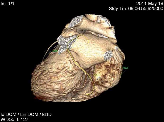 Obraz aneuryzmatu na ramus cirkumflexus (RCx) z CT koronarografie.