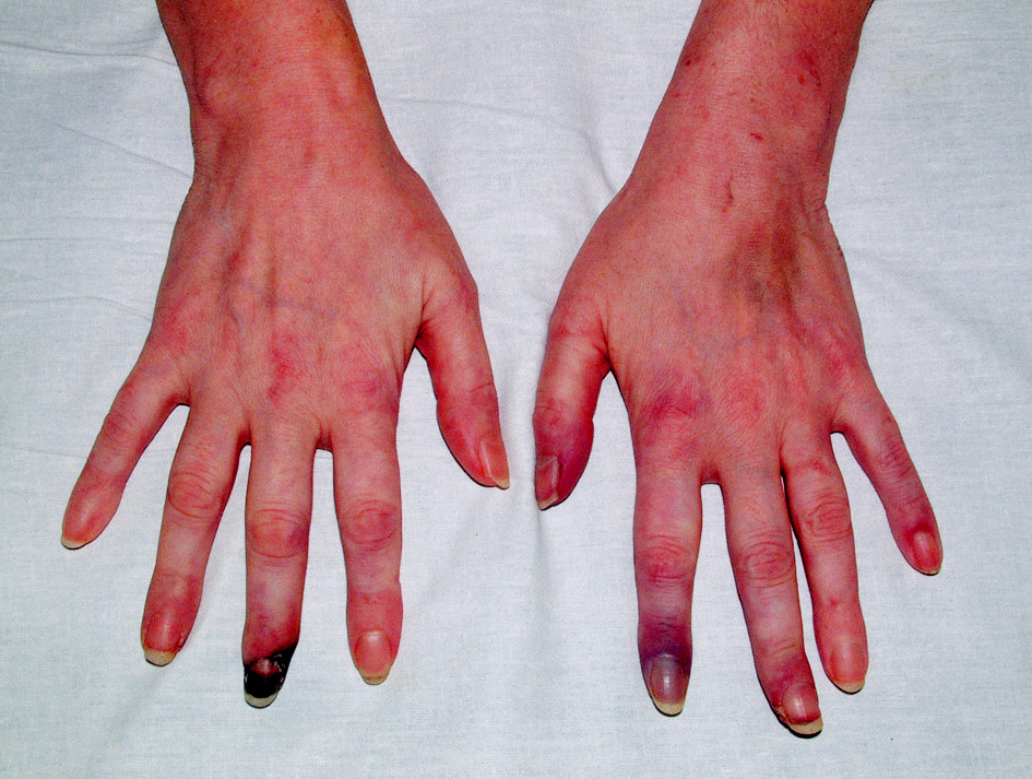 Gangrény prstů v důsledku vaskulitidy.