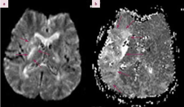 MRI DWI/ PWI mismatch. 74letá pacientka s uzávěrem a. cerebri media vlevo. Dle MRI difuze (MRI DWI) patrná porucha difuze vlevo v oblasti bazálních ganglií a kapsula interna (a). Na MRI perfuzi (MRI PWI) se zobrazuje hypoperfundované pole v povodí ACM v rozsahu cca 10 × 4 cm. Rozdíl plochy DWI a PWI (DWI/ PWI mismatch) je větší než 20 %.