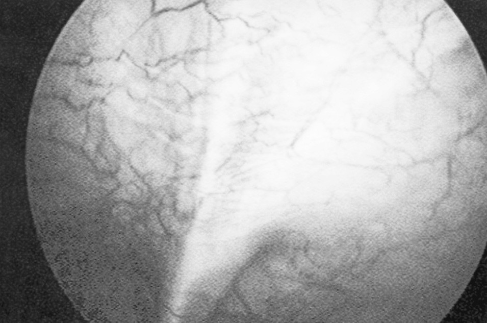 Větvení dilatované umbilikální žíly nad pupkem Fig. 2. Separating of the dilatated umbilical vein above the umbilicus