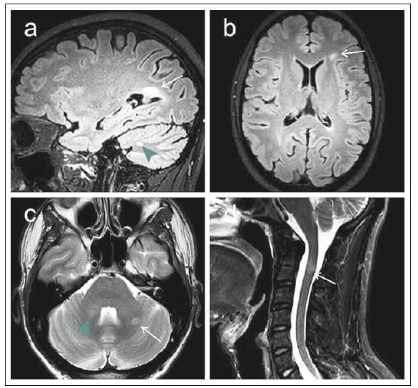 MR vyšetření na 3T přístroji u 29letého pacienta s klinickým obrazem klinicky izolovaného syndromu (CIS). Fig. 1. MRI examination on a 3T device in a 29-year-old patient with a clinically isolated syndrome (CIS) clinical image.