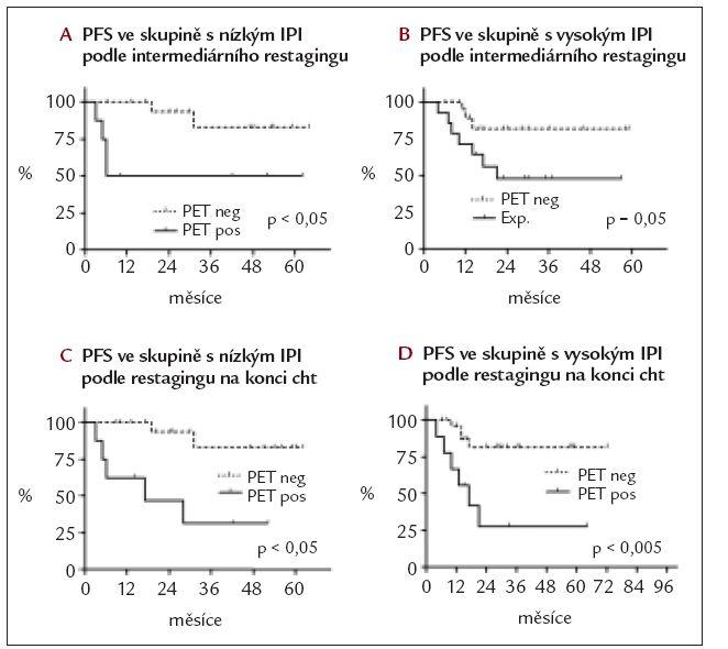 Doba do progrese (PFS) v jednotlivých rizkových skupinách podle IPI podle výsledku PET restagingu.
