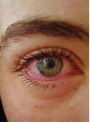 Typické zarudnutí očí