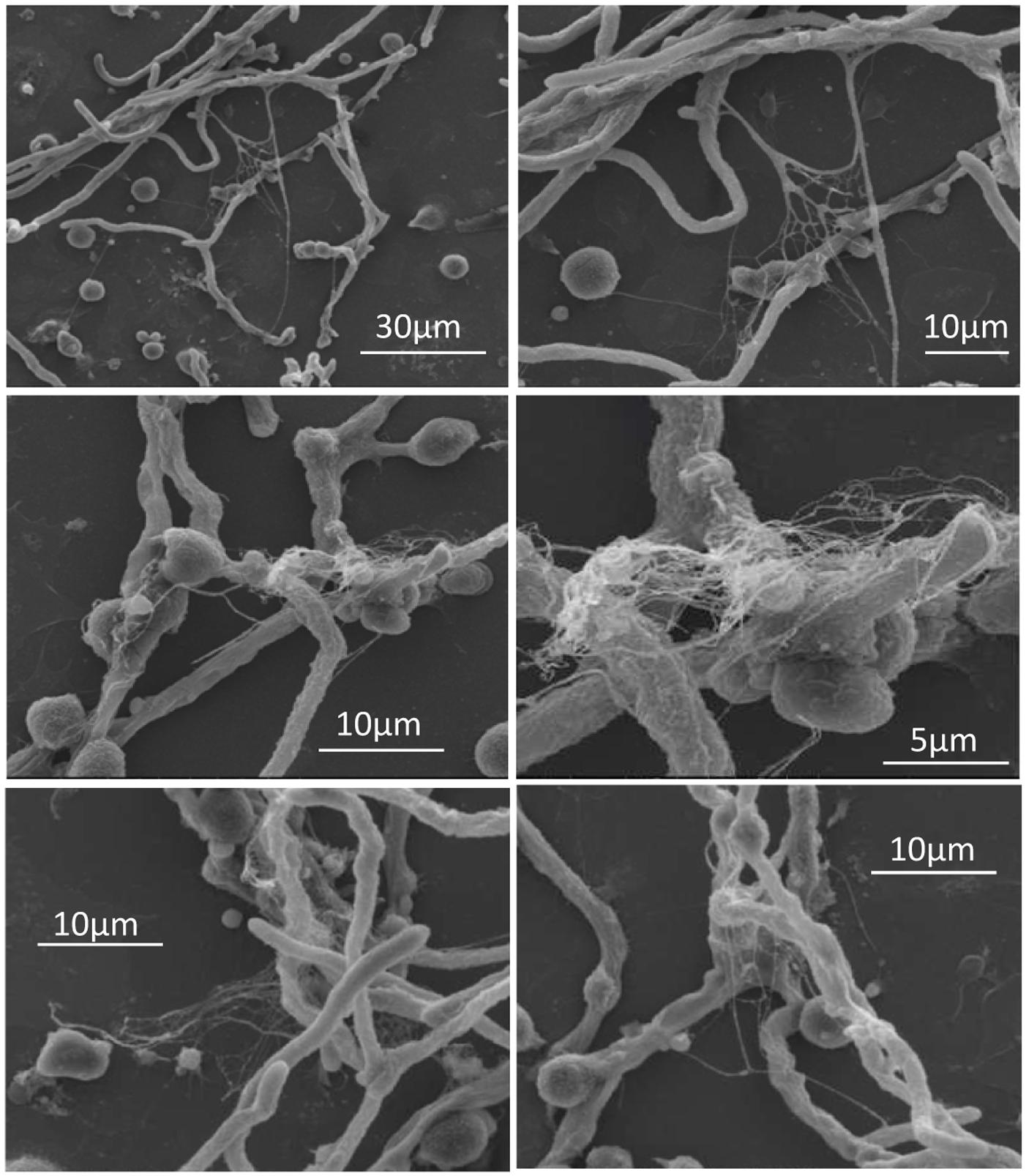 Scanning electron microscopy of pDCs incubated with <i>A</i>. <i>fumigatus</i> hyphae.